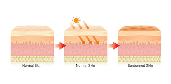 how sunburn peeling look like.