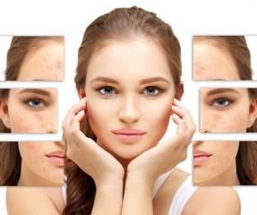 How To Shrink Pores: 7 Proven Ways To Shrink Your Pores Easily