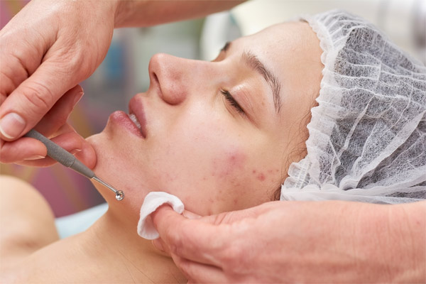 micro-needling treatment