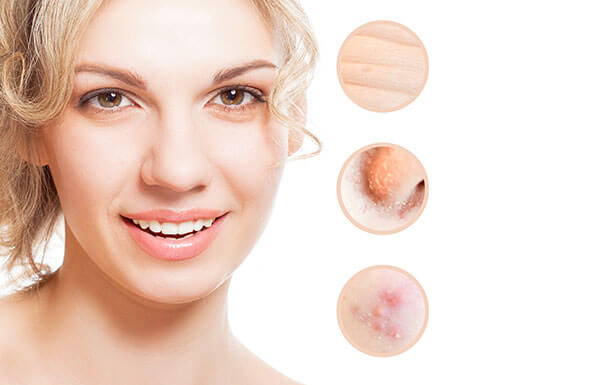 skin acne treatment