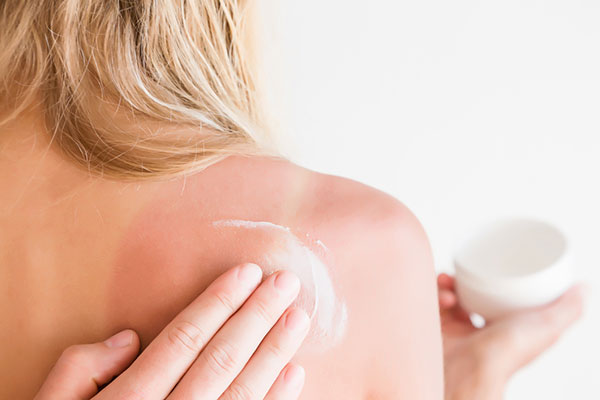 sunburn healing process