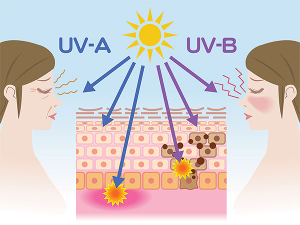 UV rays effects and aging