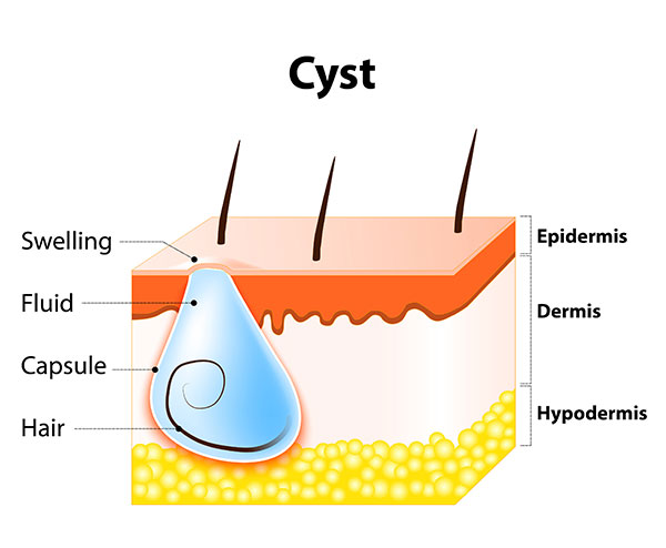 Know The Reason For Cystic Acne On Chin And Treatment