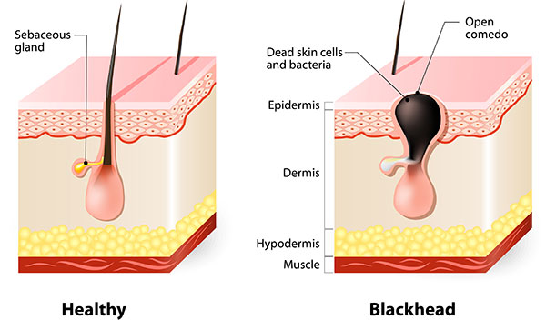 blackheads on surface of skin