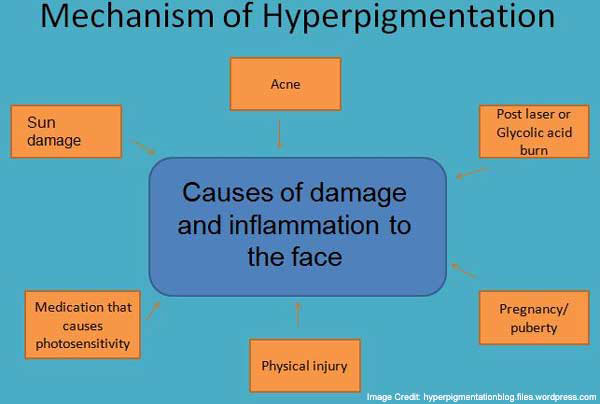 causes post inflammatory hyperpigmentation