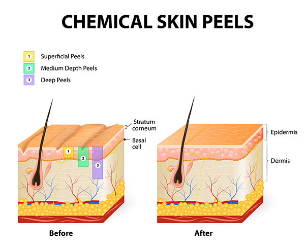 Chemical peels for skin tone