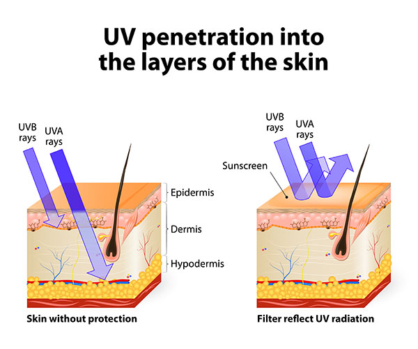 precautions for hyperpigmentation from acne