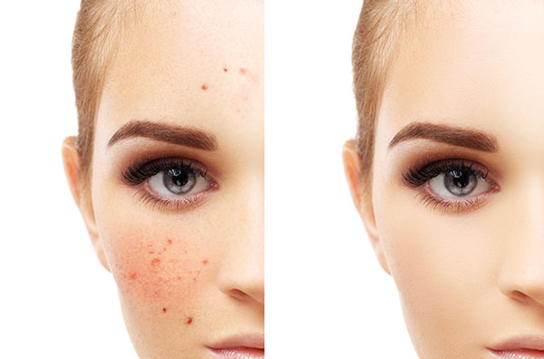 causes of hyperpigmentation from acne
