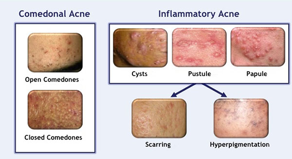 signs of hyperpigmentation