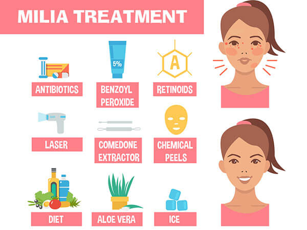 other-remedies-to-milia