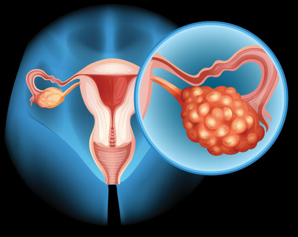 ovarian cancer diagram
