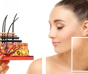 Post Inflammatory Hyperpigmentation: What Is It And How To Treat