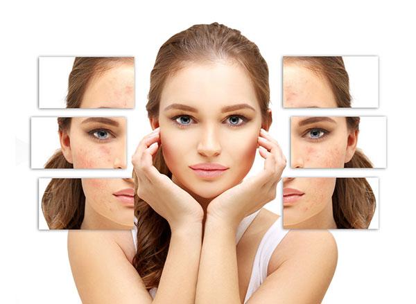Skin Care Routine For Acne-Prone Skin