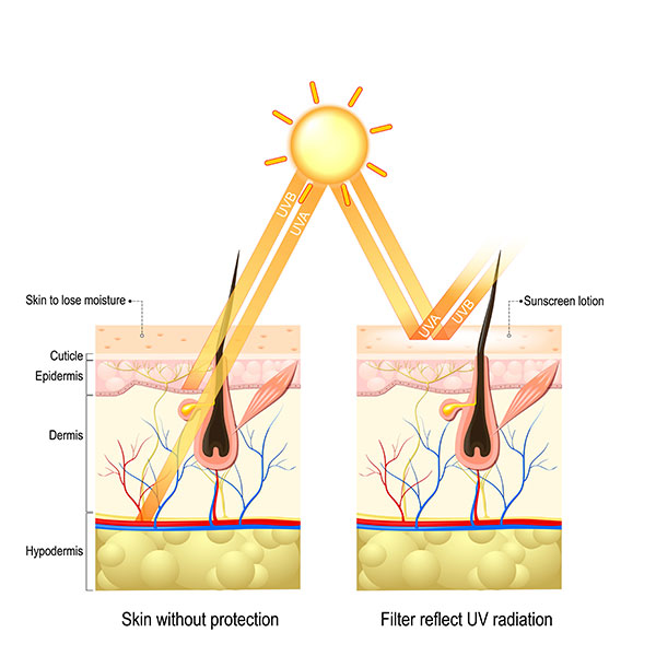 sun protection for hyperpigmentation