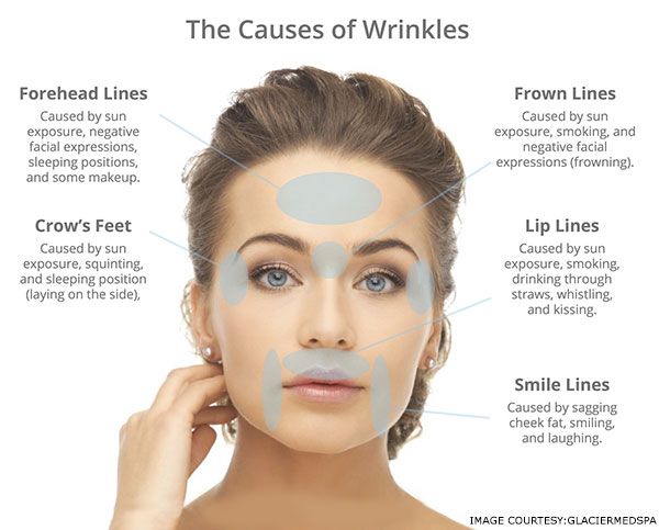 what-causes-wrinkles-on-face