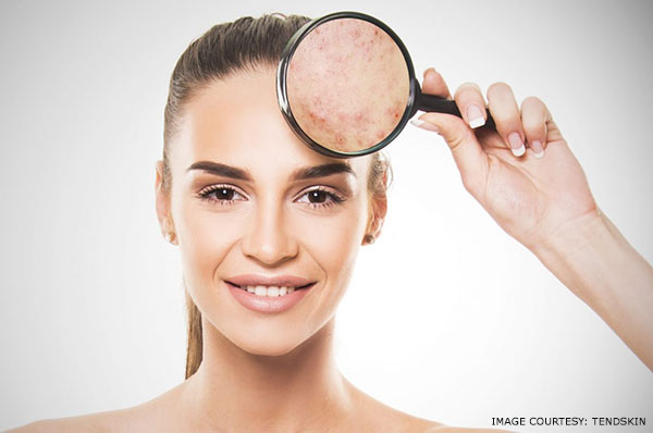 what is post inflammatory hyperpigmentation