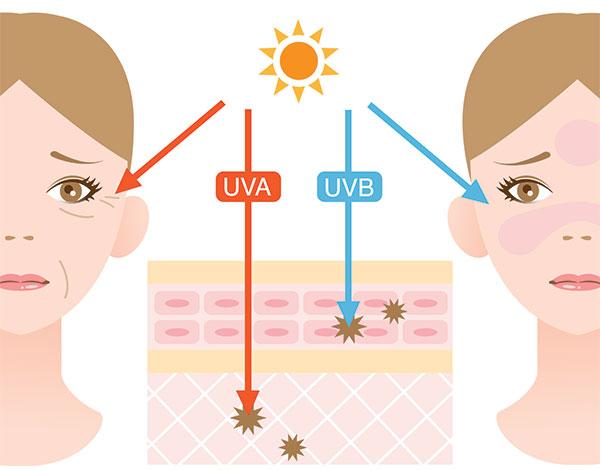 causes-of-wrinkles