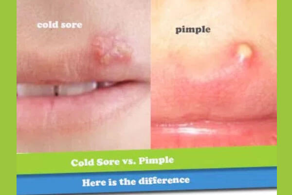 difference between a pimple and a cold sore