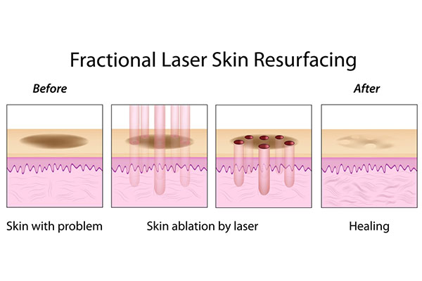 Fractional Laser Resurfacing Treatment