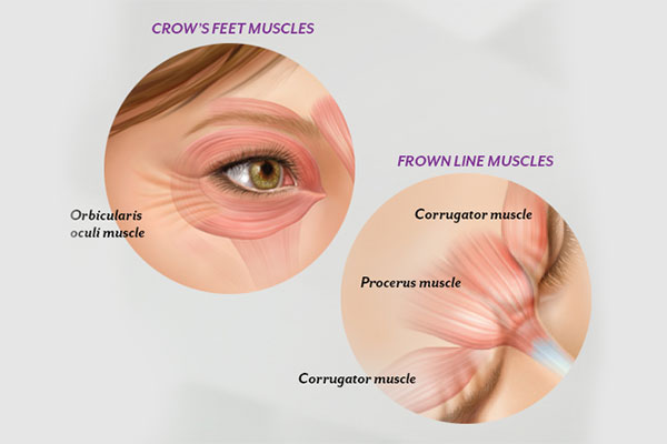 Symptoms Of  Crow's Feet