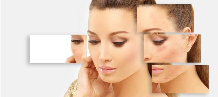 What Causes Cystic Acne? Its Symptoms And Treatment To Remove It