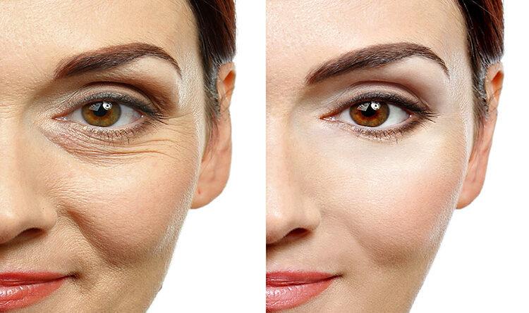 eye cream benefits